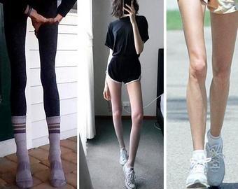 Аномально худые ноги модели шокировали интернет-пользователей