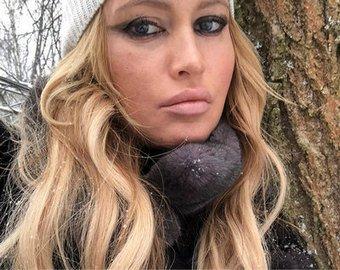 Дана Борисова обнародовала видео, как ей делают подтяжку лица