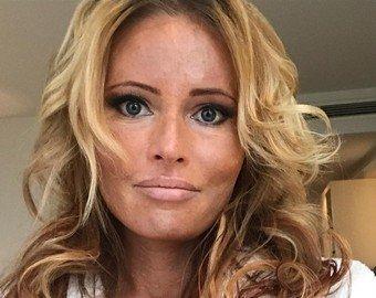 Дана Борисова шокировала поклонников пятнами на лице