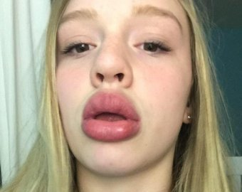 Девушки нашли простой, но небезопасный способ увеличить губы