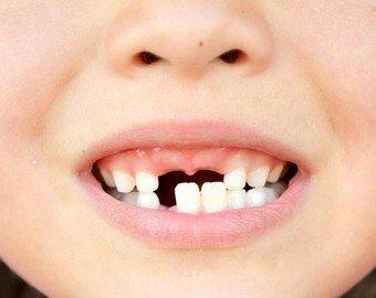 Удален самый длинный человеческий зуб в истории