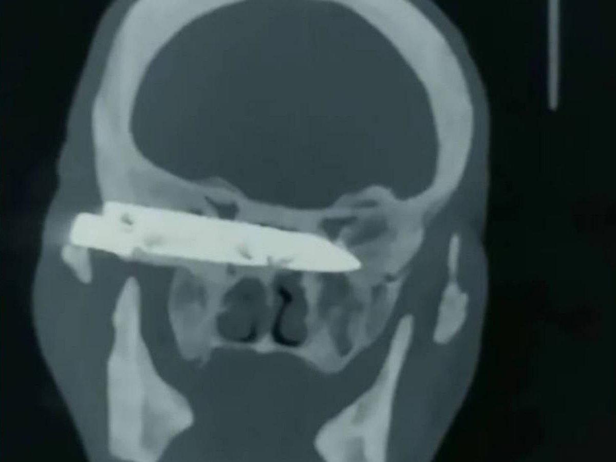 Мужчина прожил 26 лет с ножом в голове