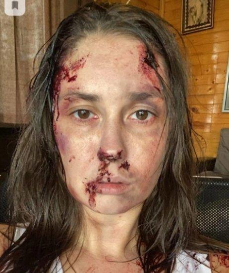 Агата Муцениеце показала фото с жуткими синяками на лице