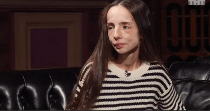Катя Яковлева на Битве экстрасенсов болела анорексией