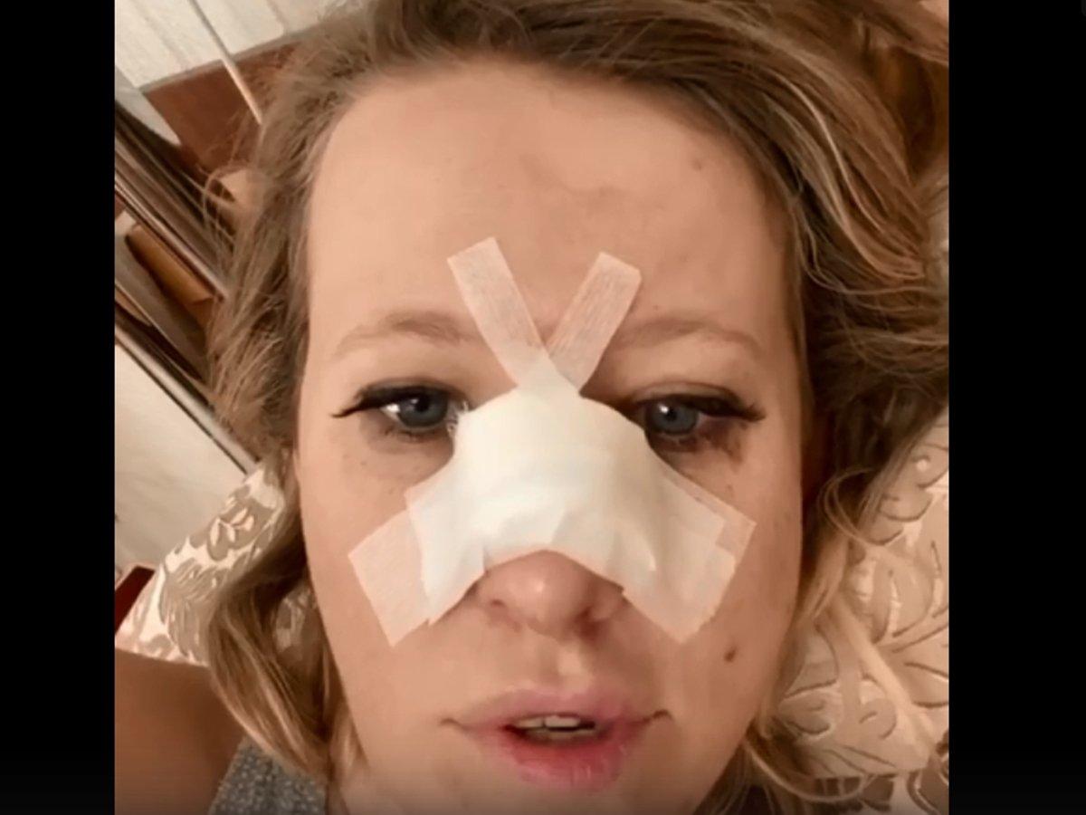 Ксения Собчак со сломанным носом