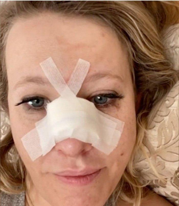 Ксения Собчак сломала нос