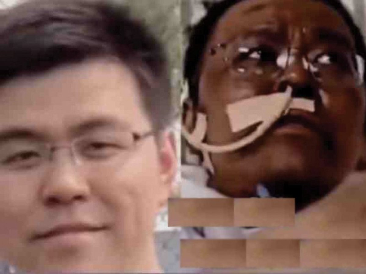 В Ухане врач почернел из-за лекарства от коронавируса и умер