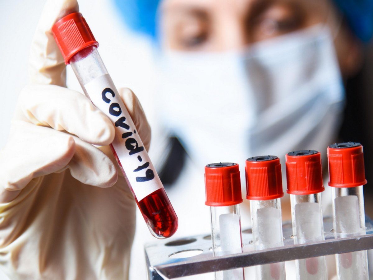 В России рассказали о новых случаях коронавируса за сутки