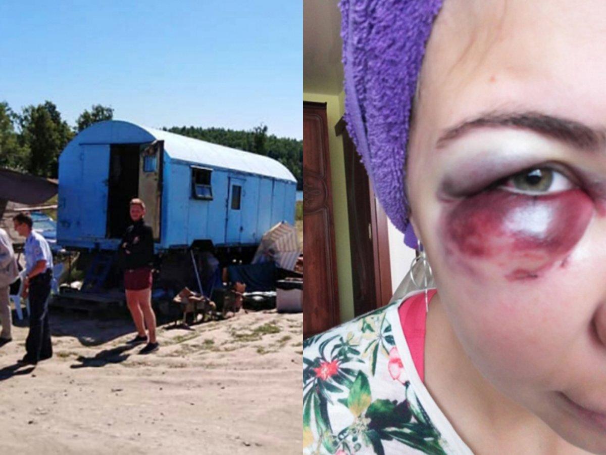 На озере Таватуй жестоко избили семью за отказ платить