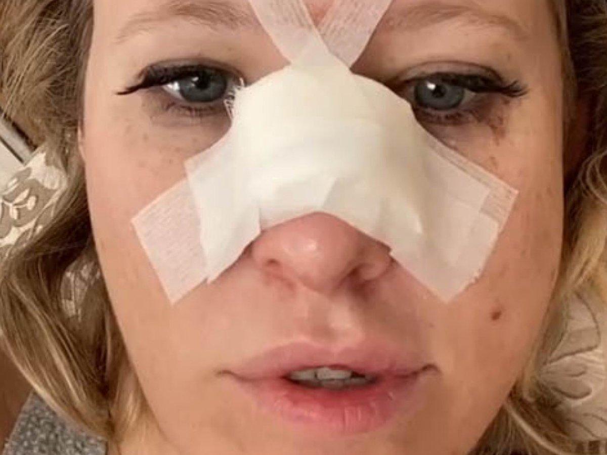Собчак сломала нос