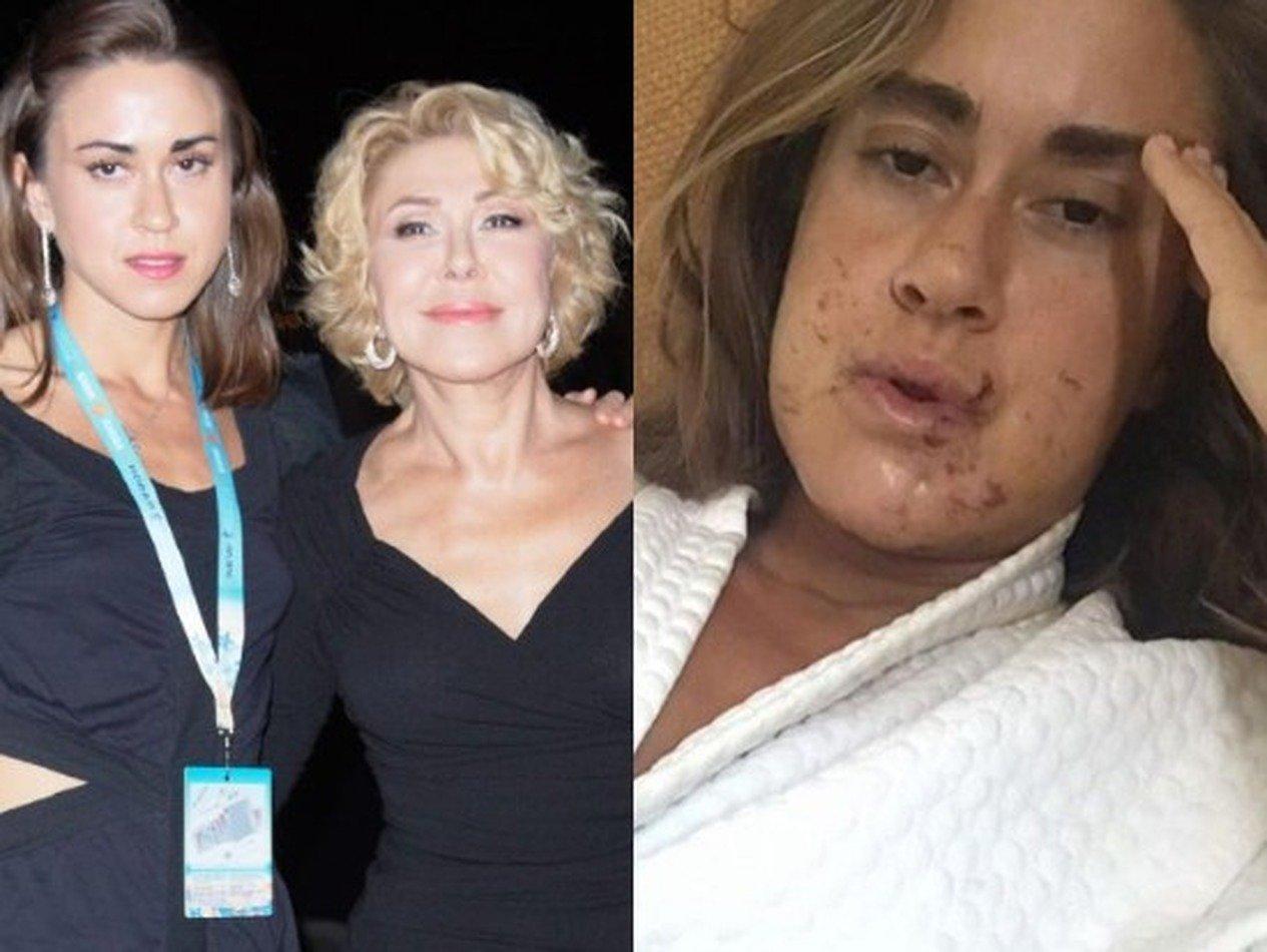 Дочь Успенской показала «беззубые» фотографии после чудовищного падения свелосипеда