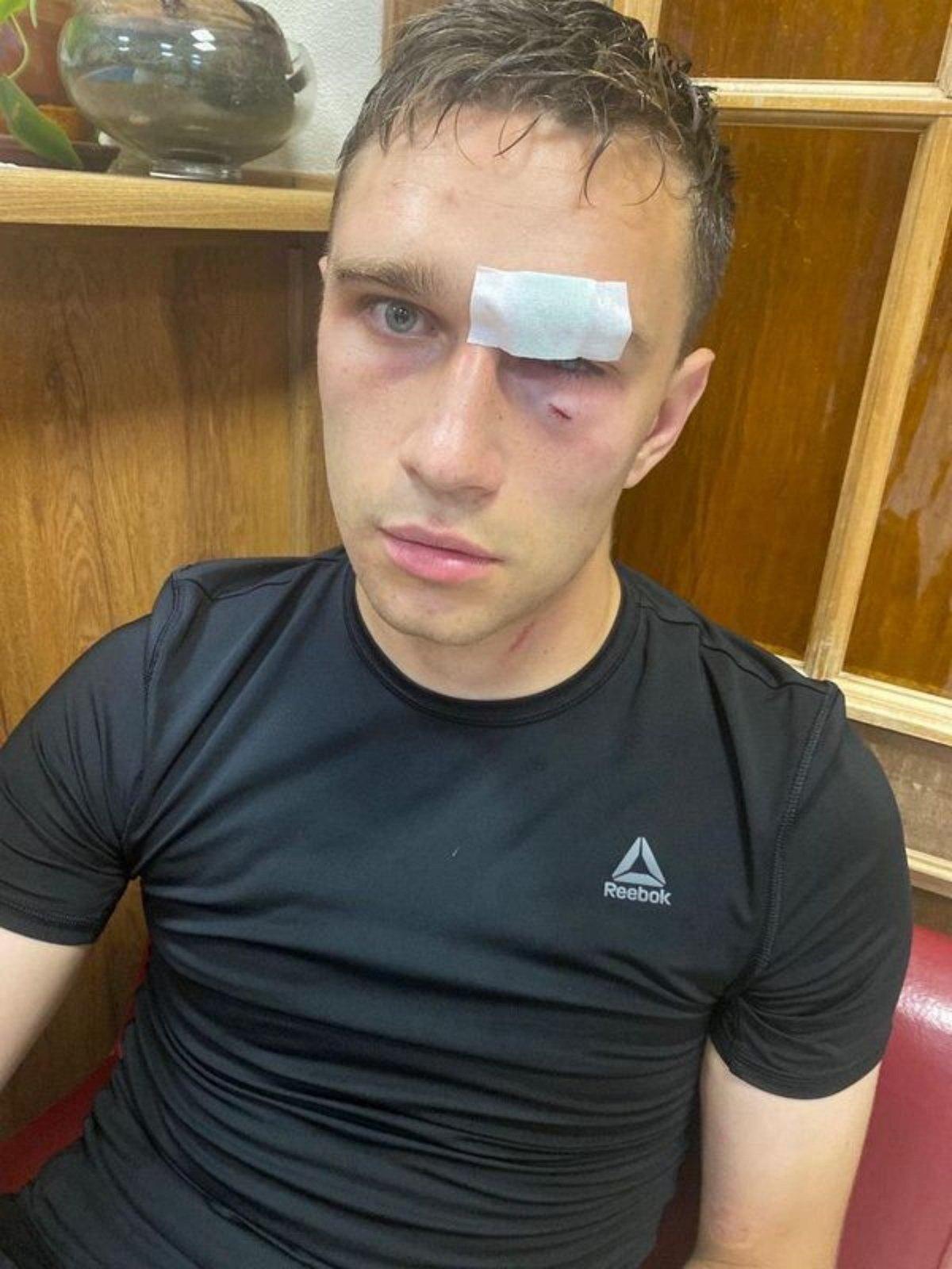 Никита Данченков избит