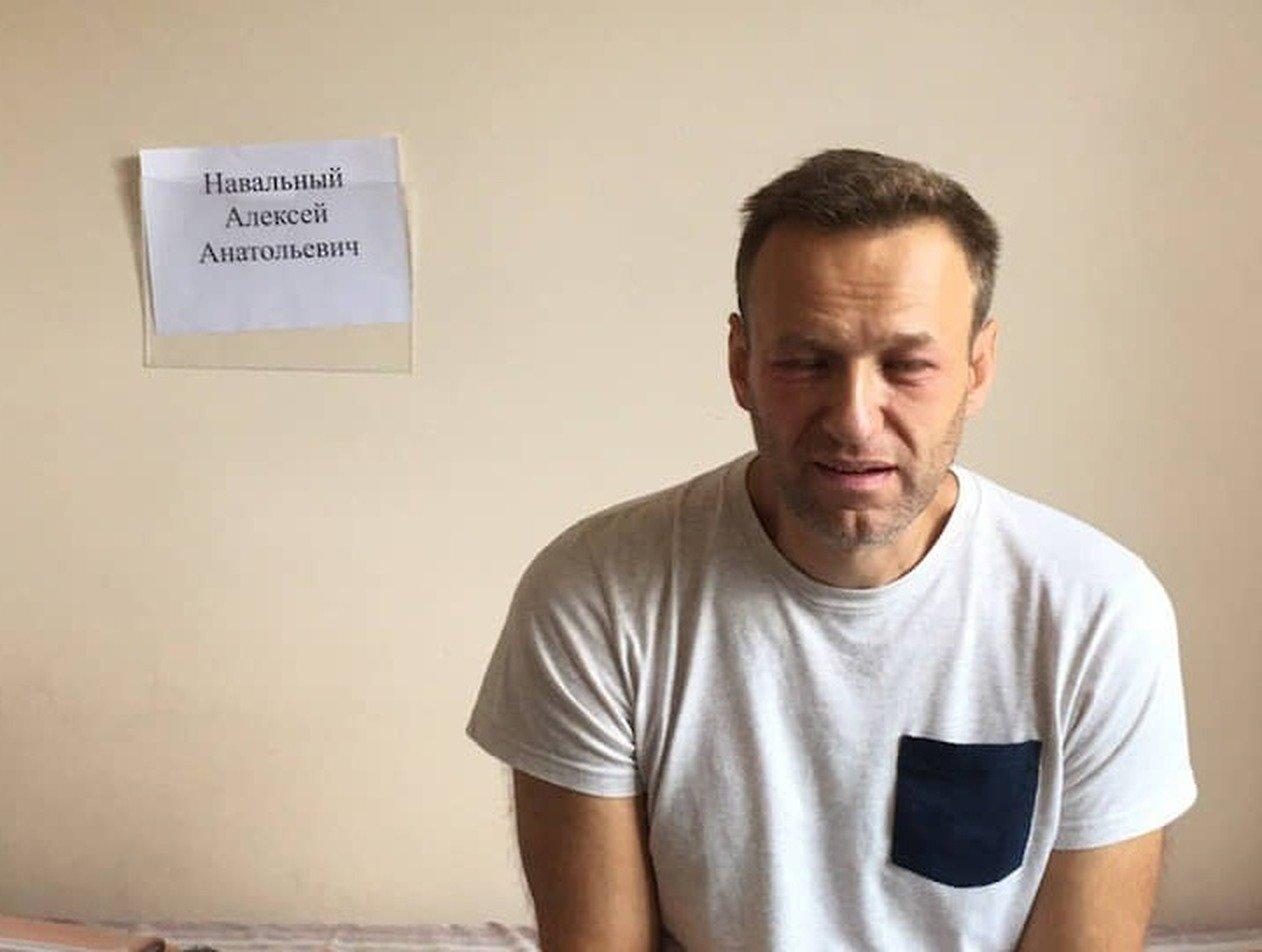 Алексей Навальный может самостоятельно ходить