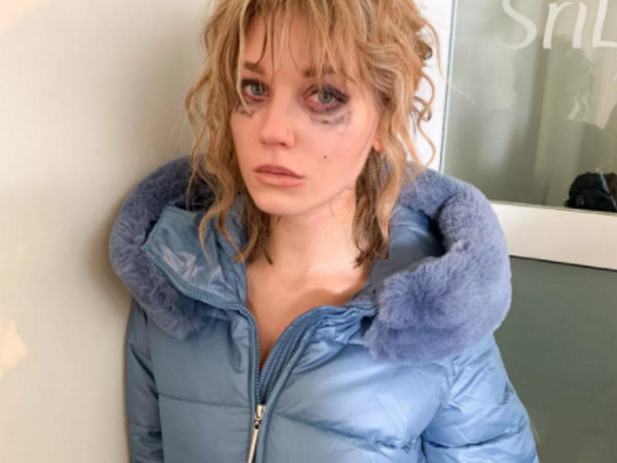 Асмус получила травму лица на съемках