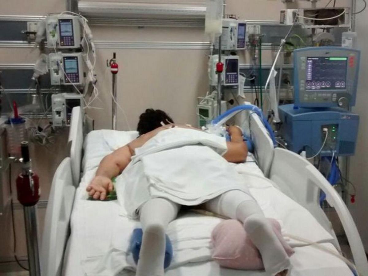 Вскрытие умерших от коронавируса изменило взгляд на процедуру ИВЛ