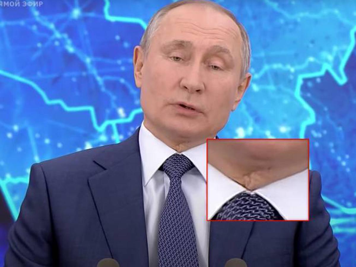 Эксперт о шраме на шее Путина