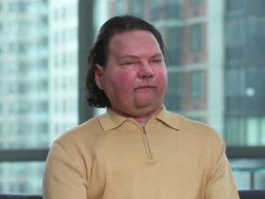 Видео о Джо Димео, которому пересадили лицо и руки, собрало 96 тыс. просмотров