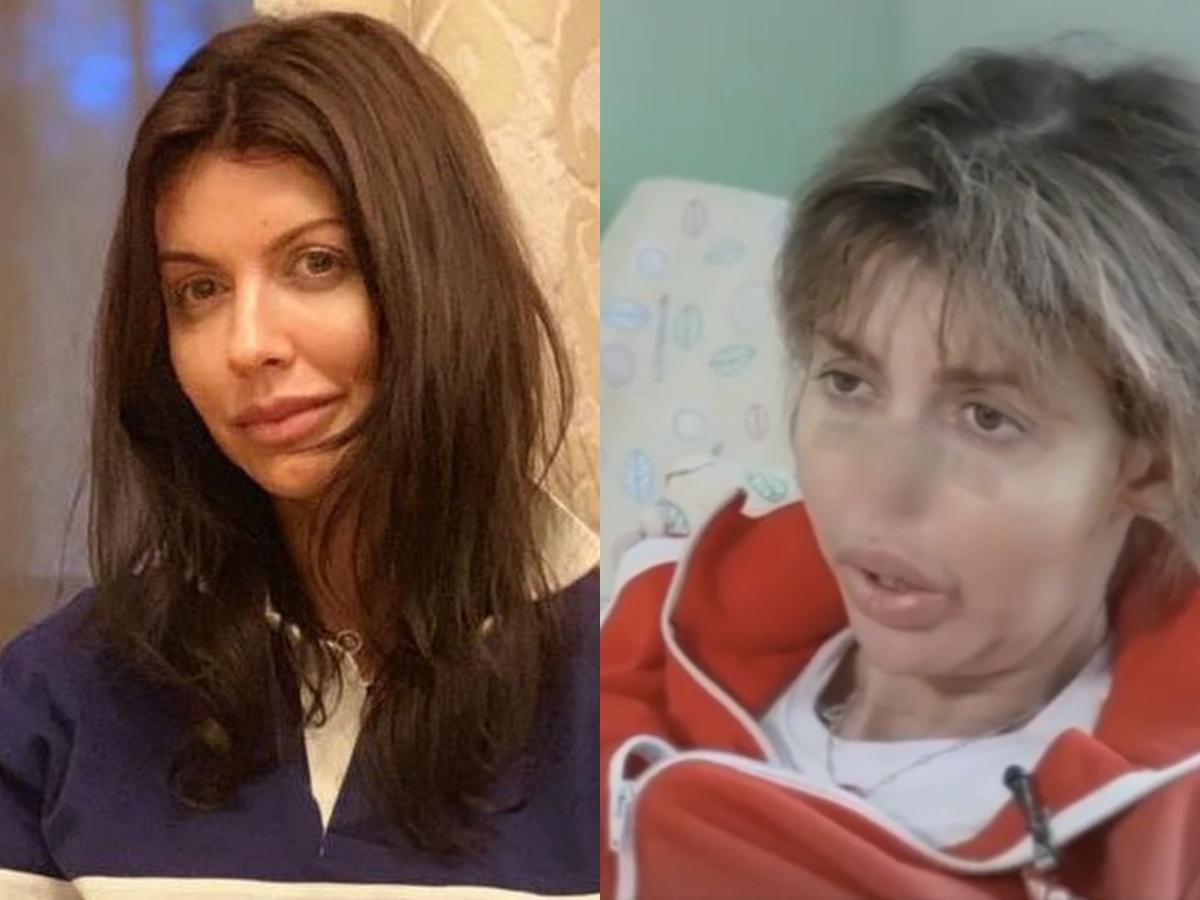 Тяжелобольная экс-супруга Аршавина не может самостоятельно ходить (ФОТО)
