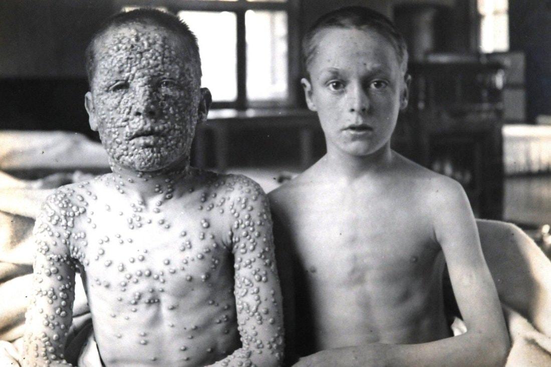 Мировая история вакцин