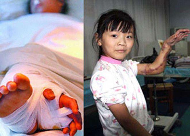 Самые первые и невероятные пересадки человеческих органов