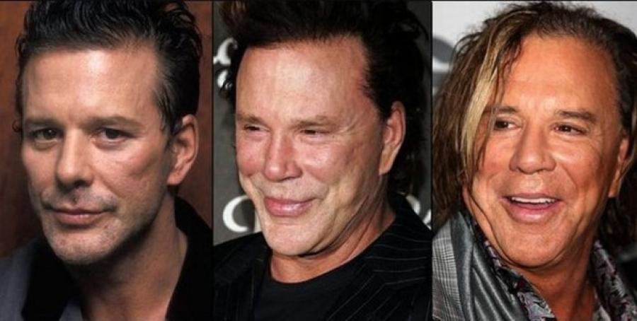 Как выглядели голливудские звезды до пластики