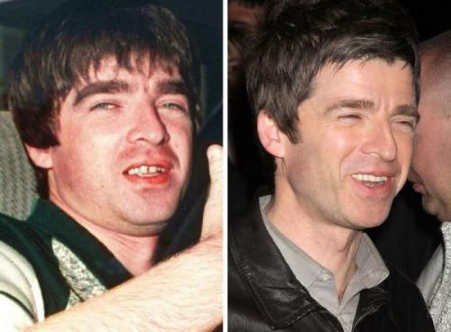 Звезды, внешность которых изменила коррекция зубов