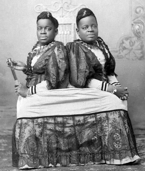 Самые известные истории сиамских близнецов
