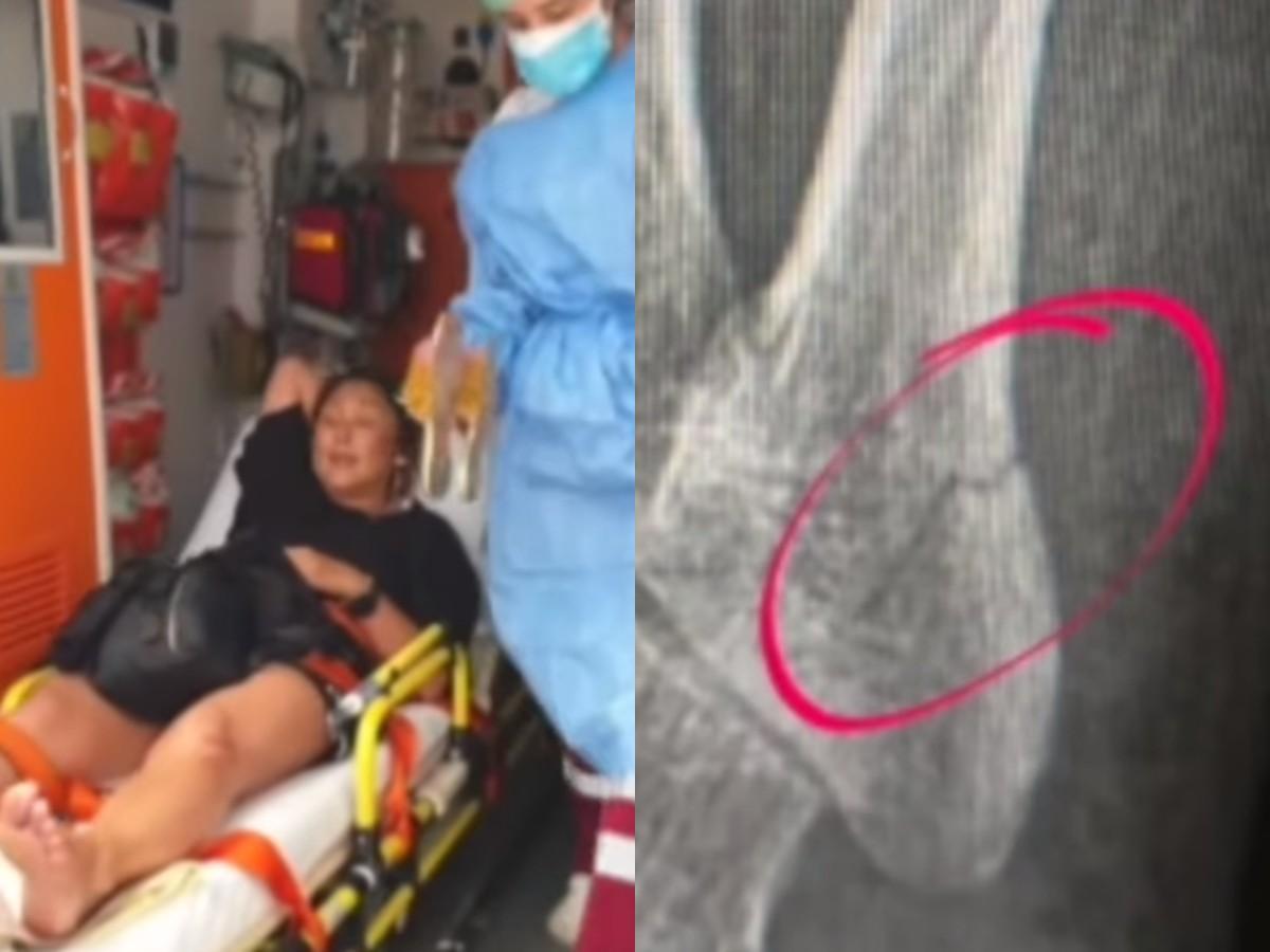«Ссадина и трещина»: Анита Цой снова оказалась в инвалидном кресле