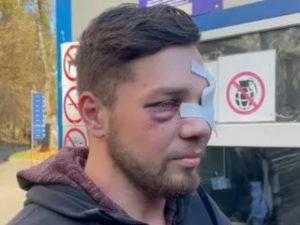 Избитый в метро дагестанцами москвич сделал заявление: он намерен