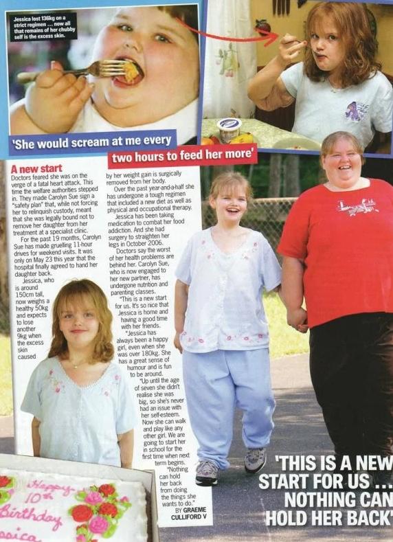 7-летняя девочка, весившая 220 кг, феноменально похудела и выросла в настоящую красавицу (ФОТО)