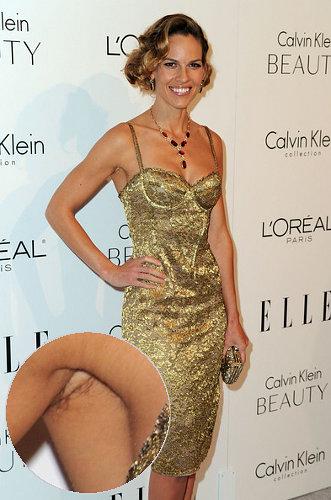 Фото женщины в платье с волосатыми ногами фото 363-751