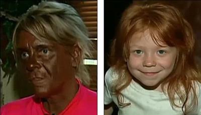 фото солярий до и после