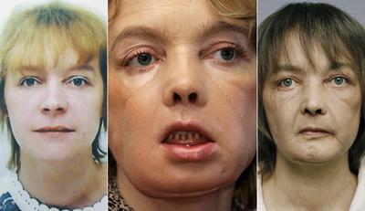 Кошмарная смерть обладательницы первого вмире пересаженного лица