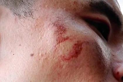 Взорвался брендовый iPhone 7, повредив лицо владельца