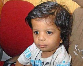 В Индии родился мальчик с 34 пальцами