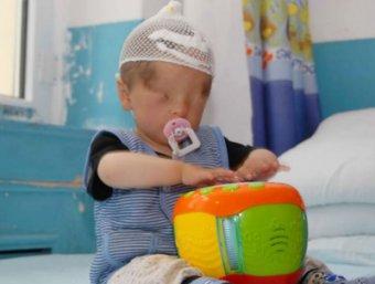 В Китае врачи вернут зрение младенцу, родившемуся без глаз