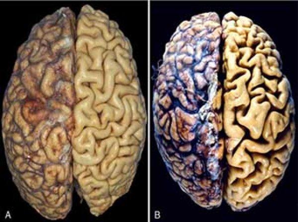 Ученые назвали популярный напиток, который может вызвать атрофию мозга