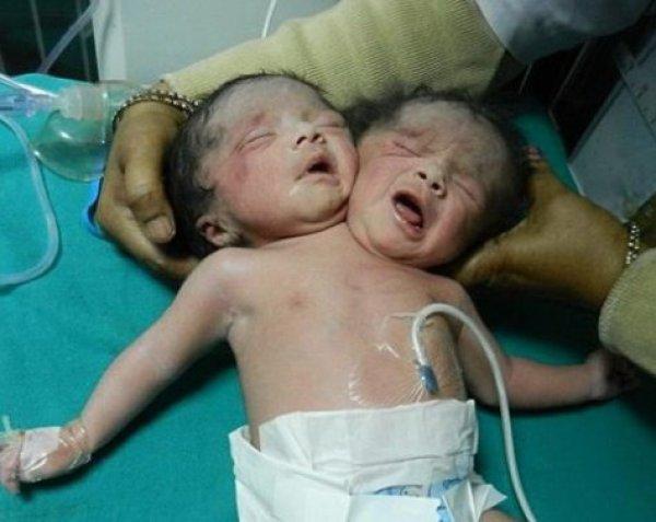 В Индии родился двухголовый ребенок