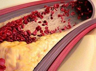 Медики назвали первые признаки появления смертоносных тромбов