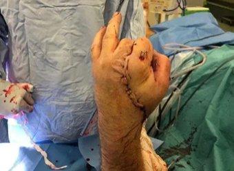 Врачи пришили отпиленную руку к паху пациента