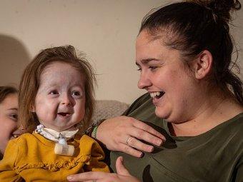 2-летняя девочка превратилась в старушку из-за редкой болезни Бенджамина Баттона ((ФОТО)