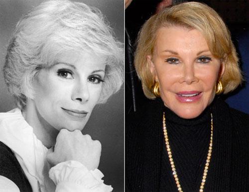 Телеведущая Джоан Риверс  в свои 64 года выглядит вполне свежо….Дело только в том, что она  никогда не знает, улыбается она, или нет… Большое количество пластических операций  лишило её морщин, но вместе с морщинами и подвижности, так что лицо стало похоже на натянутую маску…