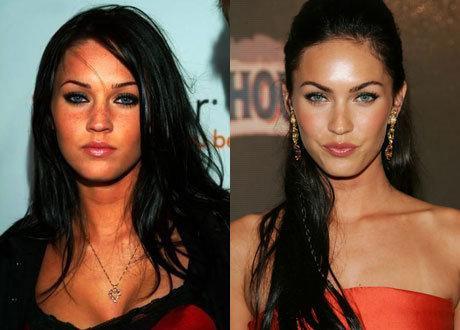 У Меган Фокс список операций начинается с носа и губ и заканчивается грудью, но все эти изменения сделали из Меган ту самую роковую красавицу