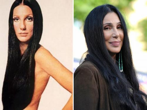 Певица Шер перенесла кучу пластических операций, но учитывая её возраст, она выглядит довольно не плохо.