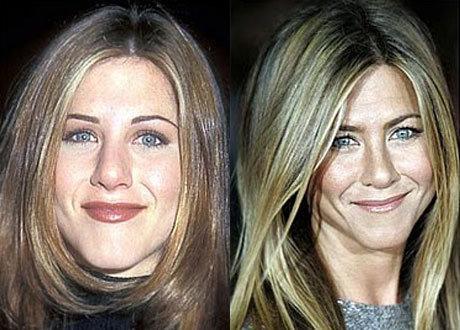 Дженнифер Энистон также меняла форму носа, что несомненно делает ее лицо аккуратнее
