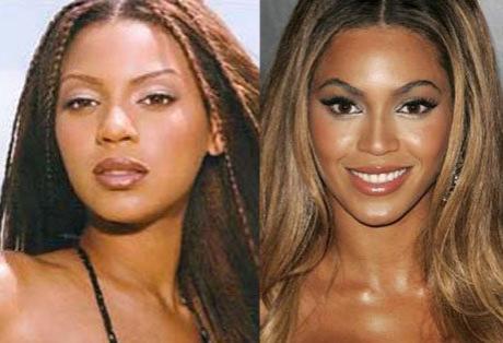 Поговаривают и про ринопластику Бейонсе, несмотря на то, что певица все отрицает- при сравнении фото 10-и летней давности, все становиться очевидно.