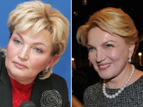 Известная женщина в украинской политике – Раиса Богатырева решилась лечь под нож хирургов. И стала выглядеть моложе.