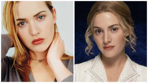Кейт Уинслет изменила форму носа, и теперь стала выглядеть лучше