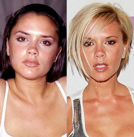 Виктория Бекхэм поменяла форму носа еще в начале своей карьеры, поговаривают, что икона стиля увеличивала и уменьшала грудь несколько раз, но на данный момент девушка отказалась от имплантов.