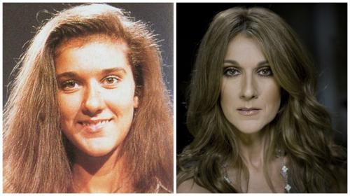 Селин Дион делала более 10 операций по коррекции внешности, но согласитесь, она стала красавицей после них